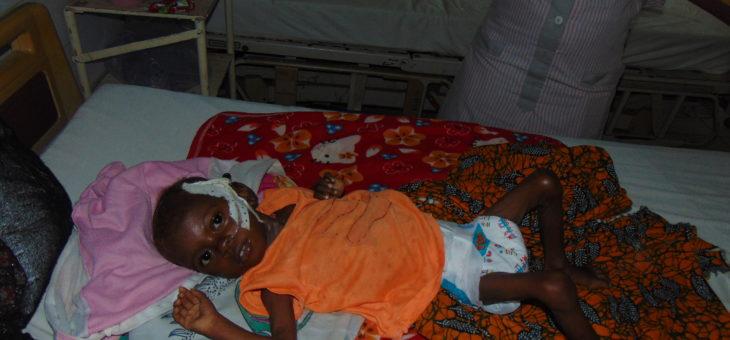 Under-Fives prone to malnutrition